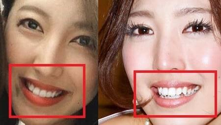 小澤陽子の歯並び比較