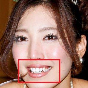 小澤陽子の歯並び