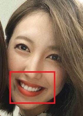 小澤陽子の歯列矯正