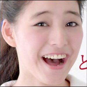 新木優子 銀歯