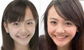 松井愛莉のあご比較