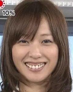 戸田恵梨香の歯茎