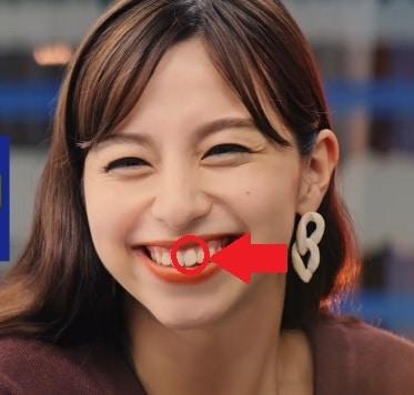 中条あやみの前歯