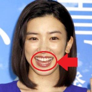 永野芽衣の歯