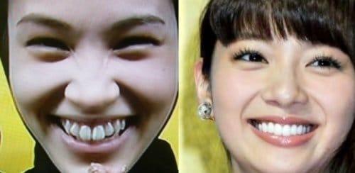 水原希子の歯を比較